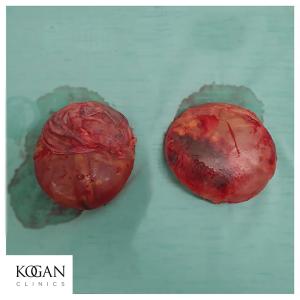 הוצאת שתלים עם קפסולה בשיטת אנבלוק דר לאוניד קוגן מנתח פלסטי